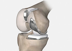 Knie Partial - Lateral und Troclea