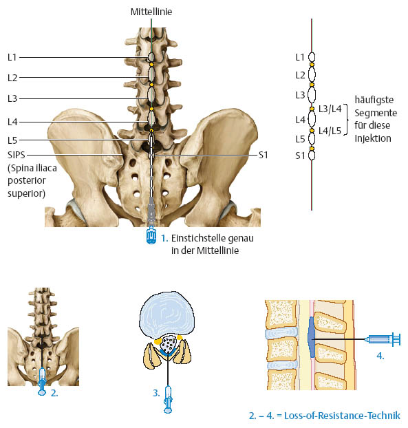 Injection Treatment Of The Lumbar Spine