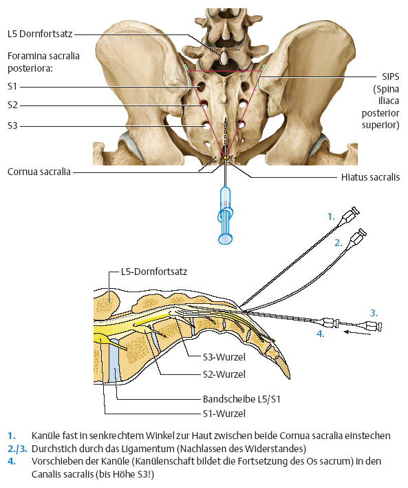 coccyx steroid injection cpt